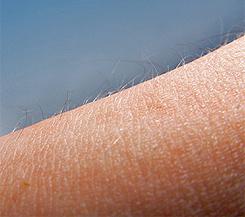 Чувствительность кожи