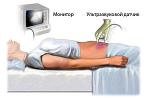 Tрансабдоминальное ультразвуковое исследование