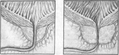 предстательная железа в норме и увеличенная предстательная железа сдавливает мочеиспускательный канал