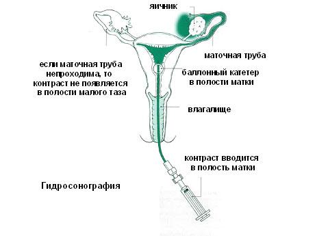 Гсг фото непроходимых труб