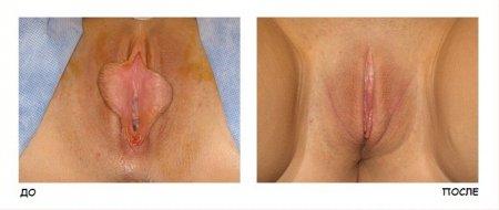 Коррекция малых половых губ